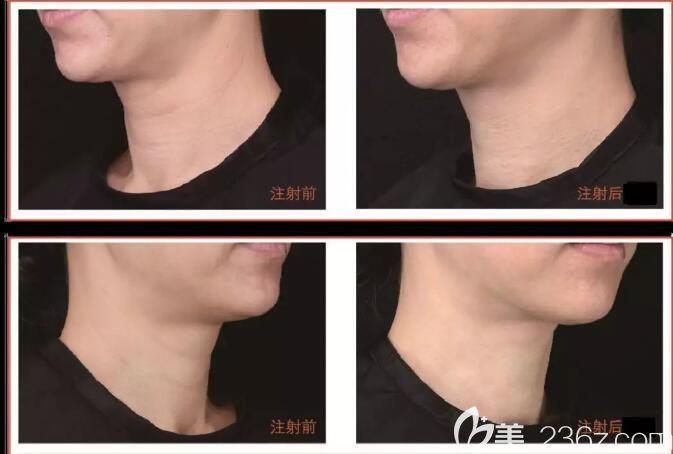 嗨体去颈纹案例对比