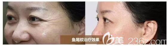 嗨体去除眼周皱纹案例分享