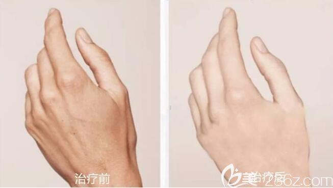 嗨体改善手部衰老案例