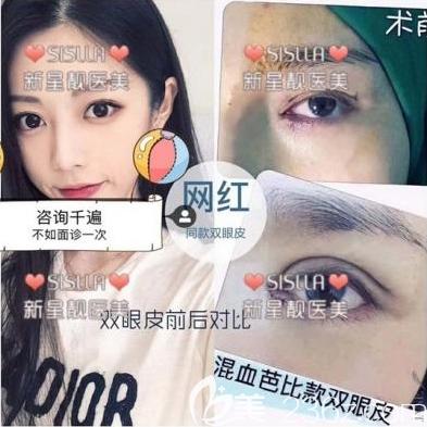 北京新星靓京广张佑阳医生切开双眼皮案例