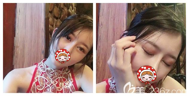 打听到新开业的南京医科大学友谊整形扬州门诊部有4680元的优惠双眼皮 去做了韩式三点术后闭眼看不到痕迹