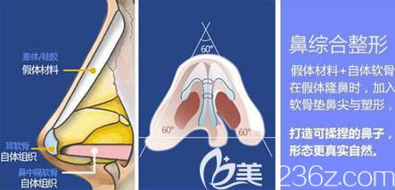 鼻综合示意图
