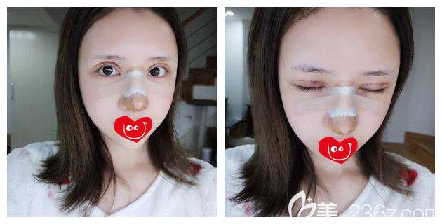 刚做完双眼皮修复+硅胶隆鼻术后即刻