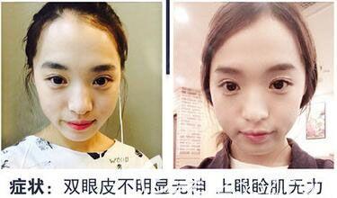 韩国原辰双眼皮案例效果前后对比图