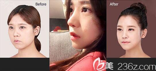 韩国原辰整形医院鼻综合隆鼻案例
