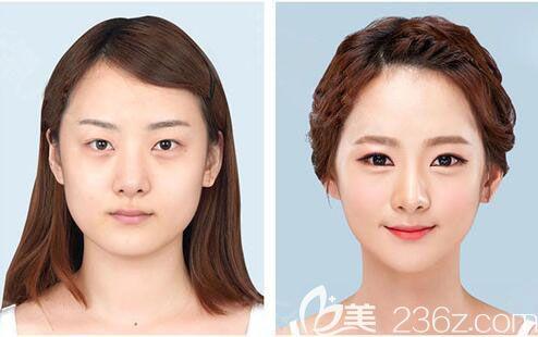 韩国原辰整形外科医院面部轮廓整形案例