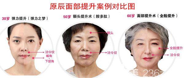 韩国原辰面部提升真人案例前后效果对比图