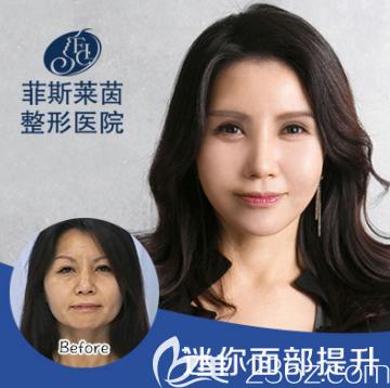 韩国菲斯莱茵Faceline整形外科迷你面部提升案例效果对比图