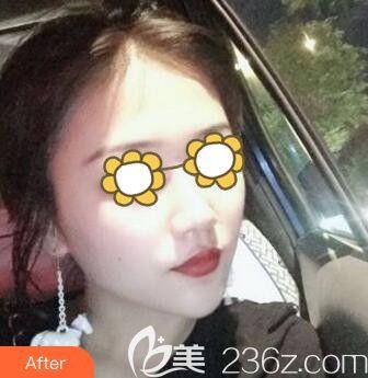 沈阳伊美尔医疗美容医院赵欣术后照片1