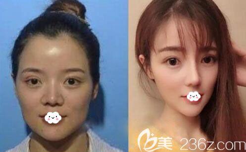 韩国纯真整形外科3D螺旋V脸提升术案例