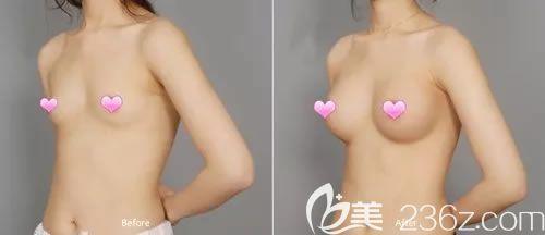 绍兴维美晶面假体隆胸案例