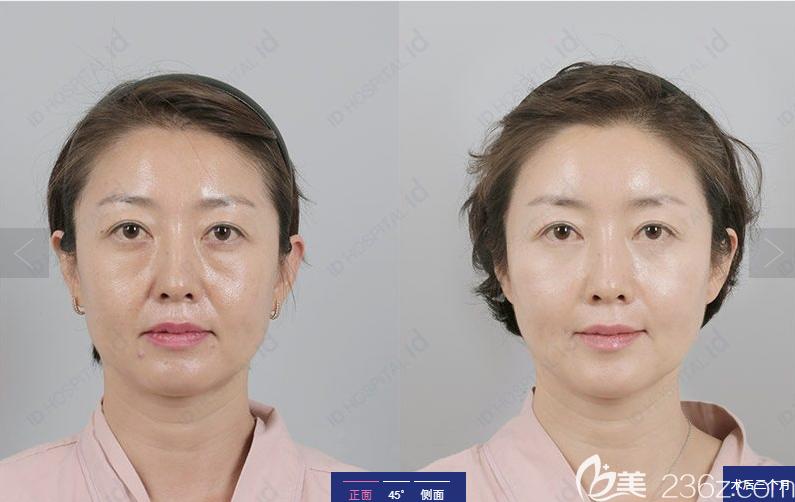 韩国ID整形医院微创拉皮术前术后3个月对比图
