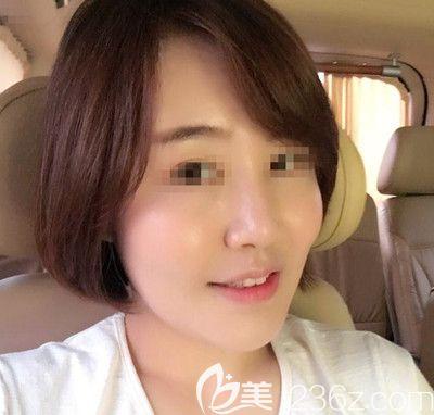 分享一下我找韩国芭堂佑炫院长做面部脂肪填充+埋线提升+埋线隆鼻手术2个月恢复过程