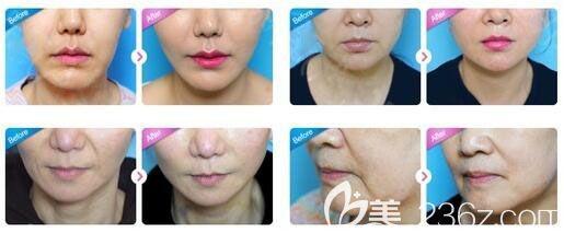 韩国UcanB小V脸蛋白线面部提升案例前后效果对比图