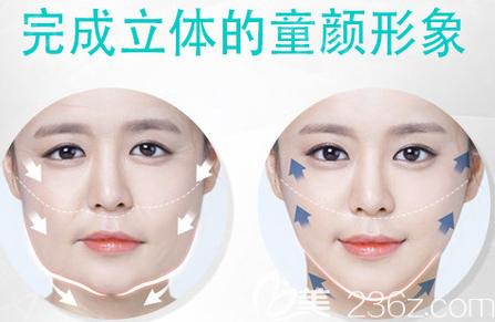 韩国拉菲安整形医院迷你拉皮面部提升效果图