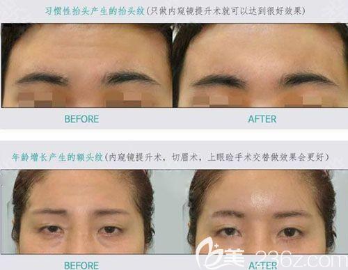 韩国绮林整形外科医院拉皮手术案例