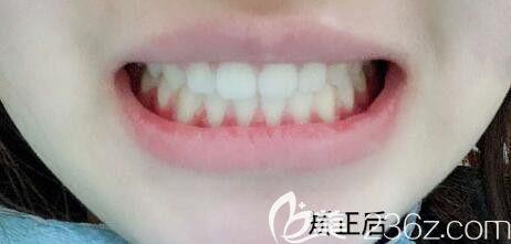 31岁走上正畸路,评价下我在武汉德韩口腔做半隐形陶瓷托槽牙齿矫正的效果好不好