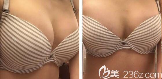 花了4.5万元价格在韩国芭堂整形外科医院找韩承范院长做300CC蓓菈假体隆胸4个月手感超柔软