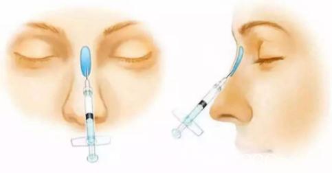 玻尿酸隆鼻示意图