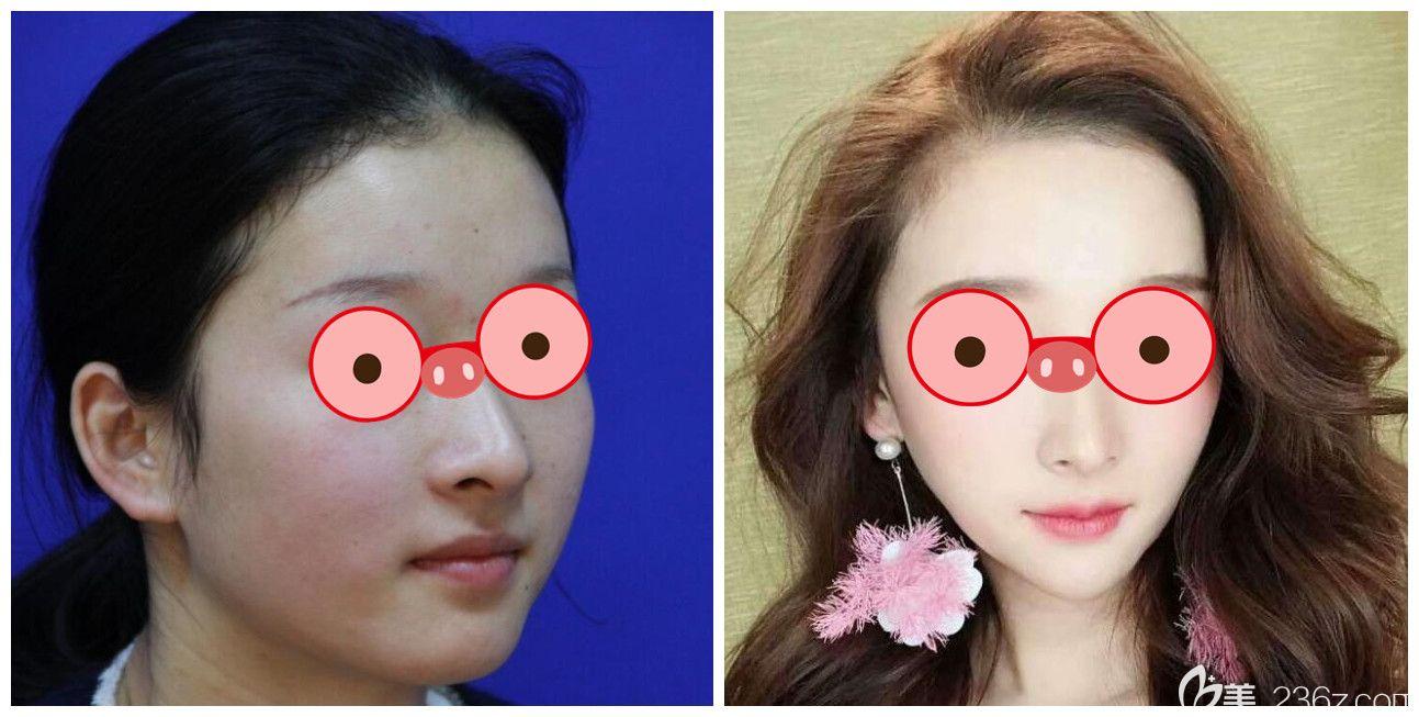 合肥维多利亚张静瘦脸案例前后效果对比照片