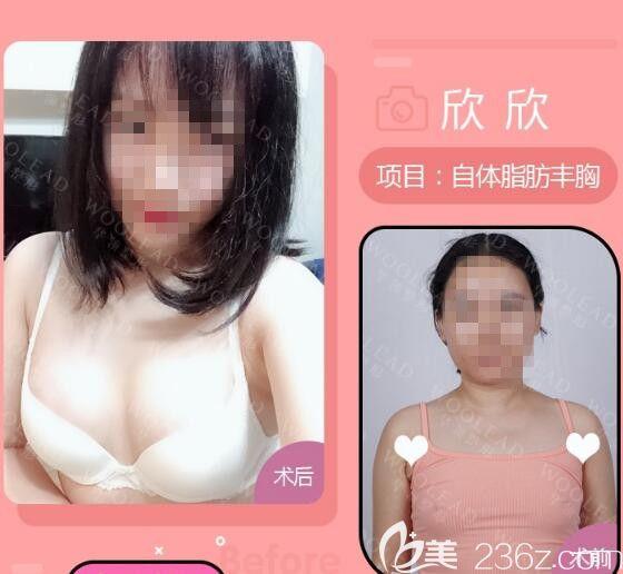 张荣明医生做自体脂肪填充前后对比