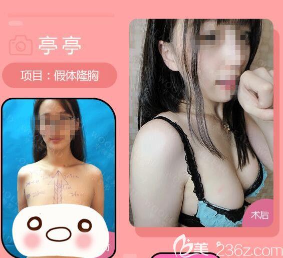 郑州华领假体丰胸前后对比照片