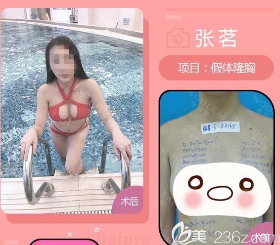 张永涛医生做假体丰胸前后对比照片