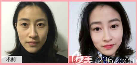 广东画美石林医生做双眼皮怎么样