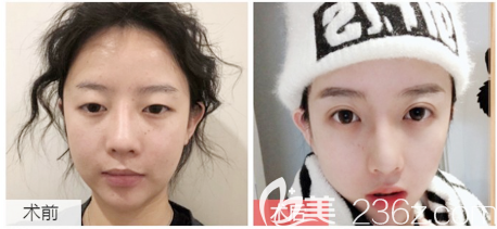 广东画美石林医生双眼皮案例