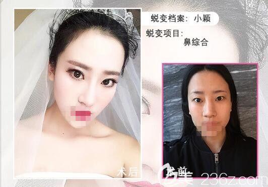 骆豫医生顾客 鼻综合手术前后对比照片