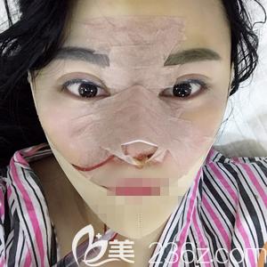 郑州非零做线雕和肋软骨隆鼻手术当天