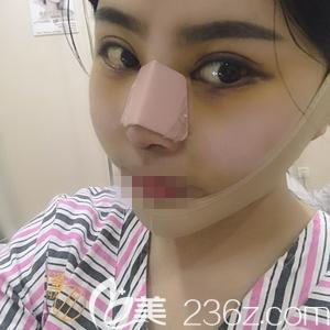 郑州非零做线雕和肋软骨隆鼻术后4天