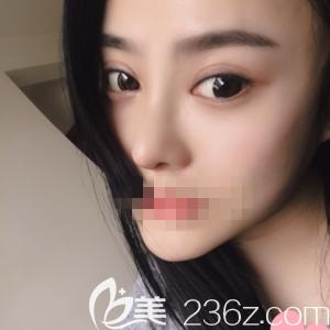 郑州菲林医疗美容门诊部骆豫术后照片1