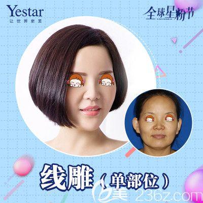 武汉艺星线雕单部位除皱术前术后对比