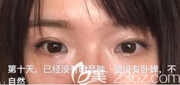 在济南做的激光去眼袋手术+自体脂肪填充泪沟已经恢复30天了,感觉自己年轻了5岁了耶