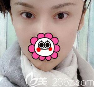对比了几家医院后选了韩国芭堂整形医院做了失败双眼皮修复后3个月就告别了眼睛疤痕