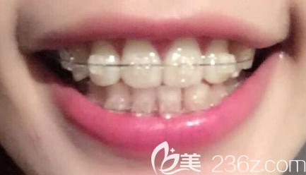 在沈阳百嘉丽口腔做陶瓷托槽矫正才1年,我这么凌乱的牙齿居然就排齐了!