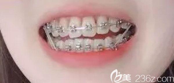 深覆合矫正会变丑吗?来看我在广州雅度口腔正畸后的图片