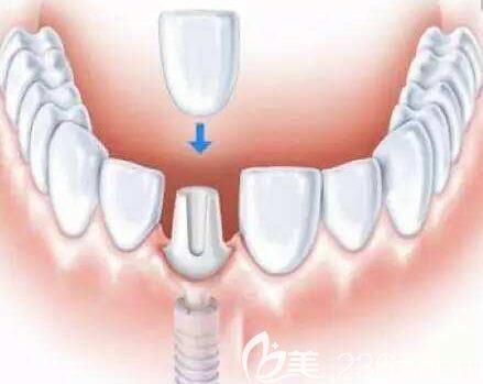 洛阳九龙口腔郑淑敏介绍单颗牙缺失需要及时修复