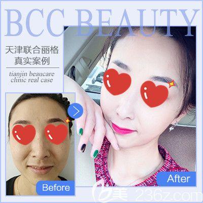 天津联合丽格衡力瘦脸针术前术后对比图