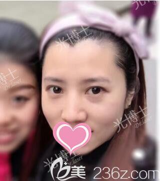 之前在上海光博士做的激光祛斑效果好,现在我找李彬做了切开双眼皮