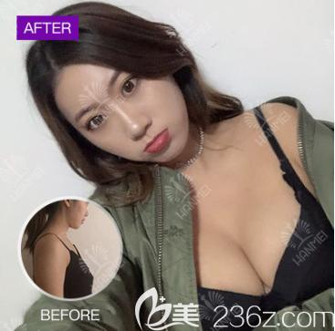 太全面!您有一份遵义韩美整形价格和隆胸吸脂祛斑等案例效果图,请查收。