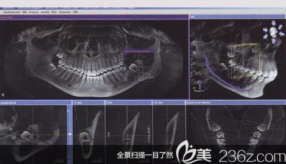 洛阳九龙口腔刘孟厚医生介绍什么是微创种植牙