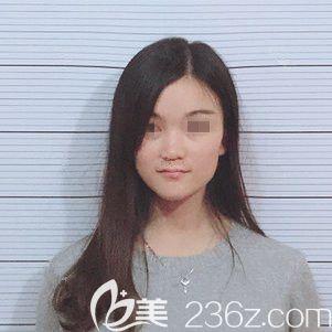 南京亚韩整形美容医院周发扬术前照片1
