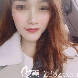 南京亚韩整形美容医院周发扬术后照片1