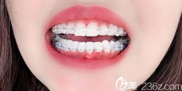 下排牙参差不齐在深圳德贝美口腔花了2万元做矫正,期待摘牙套的那一刻