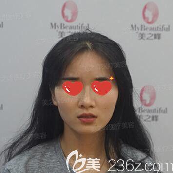 长沙美之峰医疗美容门诊部刘磊术前照片1