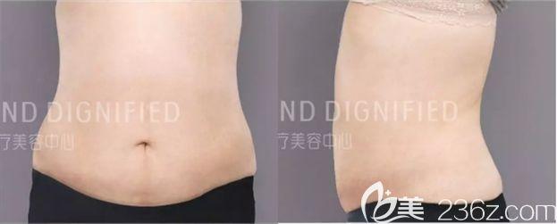 前年做的腰腹吸脂没效果,今年在长春姬安娣整形吸脂瘦腹后终于圆了我的减肥梦!