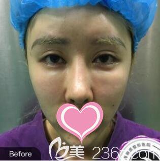 上海丽质医疗美容门诊部卢九宁术前照片1
