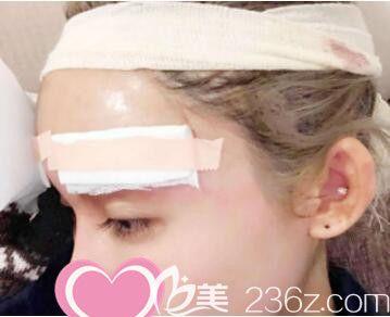 上海丽质医疗美容门诊部卢九宁膨体丰眉弓真人案例术后第5天